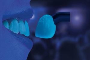 Abb. 2: Für eine natürliche optische Wirkung sorgt auch die inhärente Fluoreszenz, deren Intensität auf die jeweilige Zahnfarbe abgestimmt ist