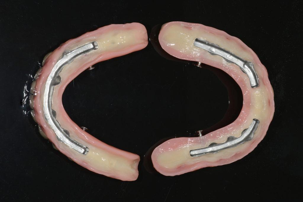 Abb. 16: In die Prothese eingearbeitete Stegmatrizen mit lingualen Riegeln.