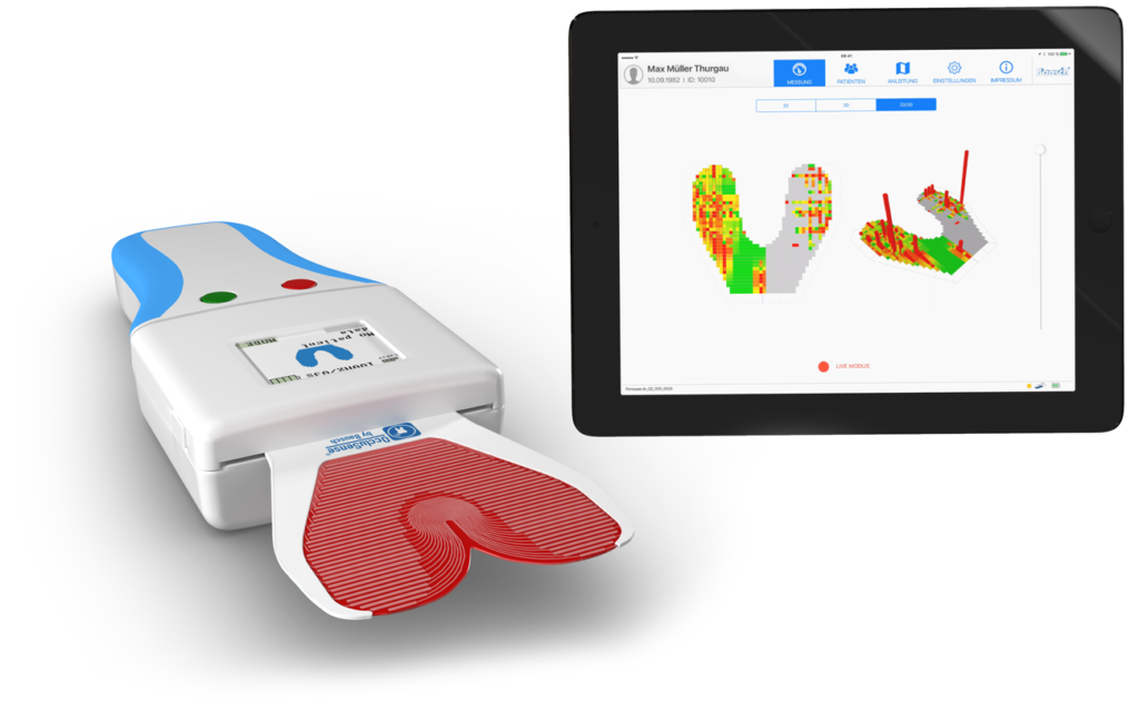 OccluSense®  – Innovatives System zur digitalen Occlusionsprüfung