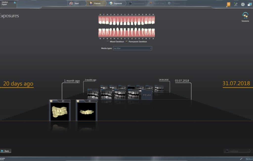 Dentsply Sirona bringt eine neue Softwareversion Sidexis