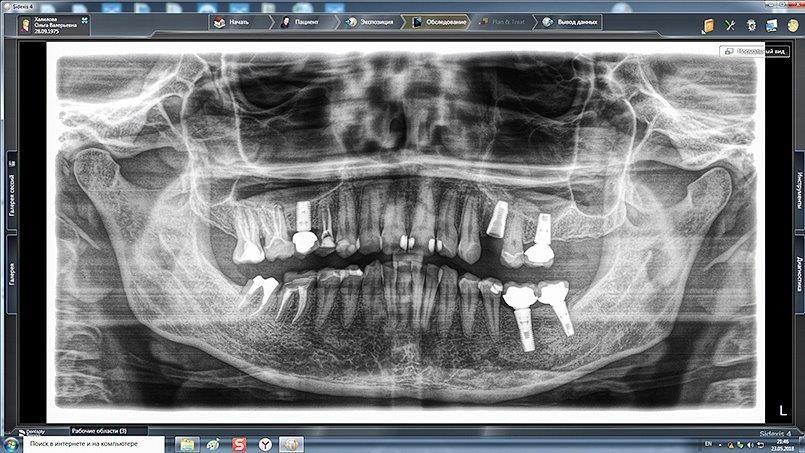 Sichere Implantatplanung mit dem Ortophos SL