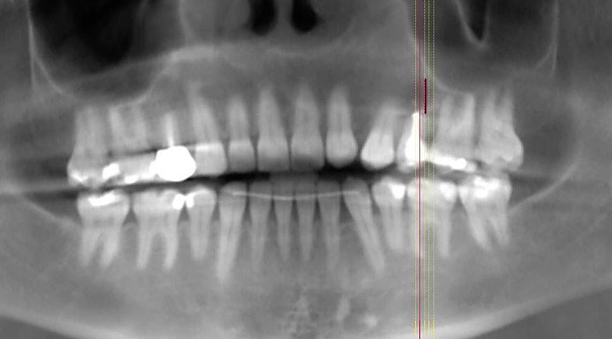 Sofortimplantation in beeinträchtigtem Knochen.