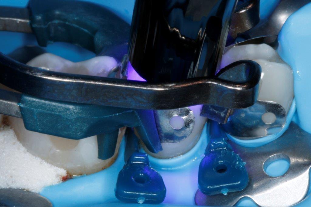 Austausch von Amalgamfüllungen gegen Restaurationen mit einem Bulk-Fill-Komposit – ein klinischer Fallbericht